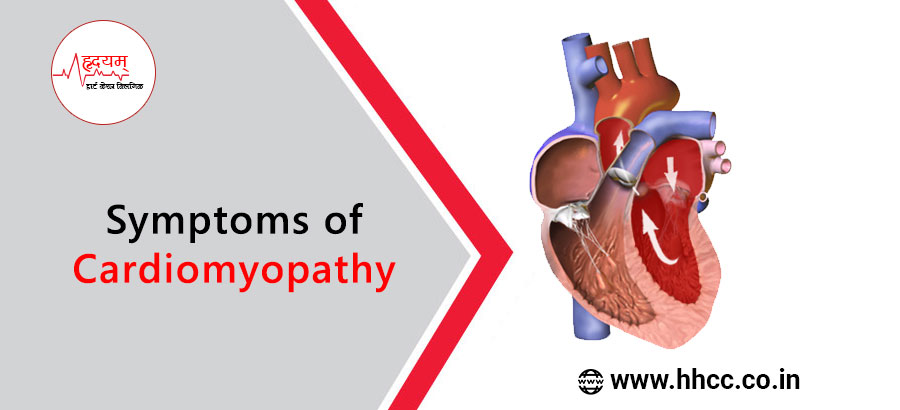 symptoms of Cardiomyopathy