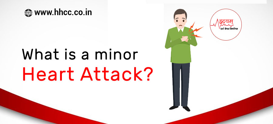 What is a minor heart attack?